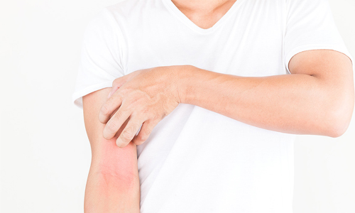 Día Mundial de la Dermatitis Atópica
